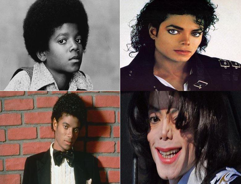 La impactante transformación de Michael Jackson, una vida de cirugías