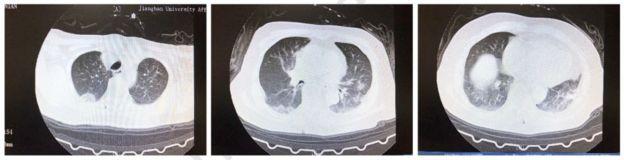Los exámenes mostraban señales en los dos pulmones que pueden ser asociados a una neumonía. (Foto Guatevisión: BBC News Mundo)